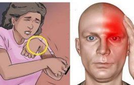 أسباب السكتة الدماغية... إليك كيفية الوقاية منها